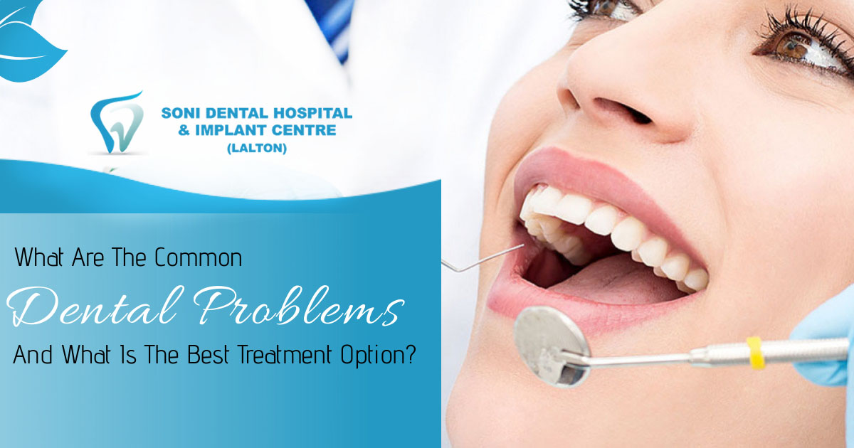 What are the common dental problems and what is the best treatment option