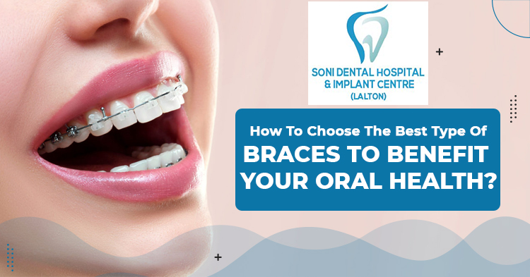 How-to-choose-the-best-type-of-braces-to-benefit-your-oral-health