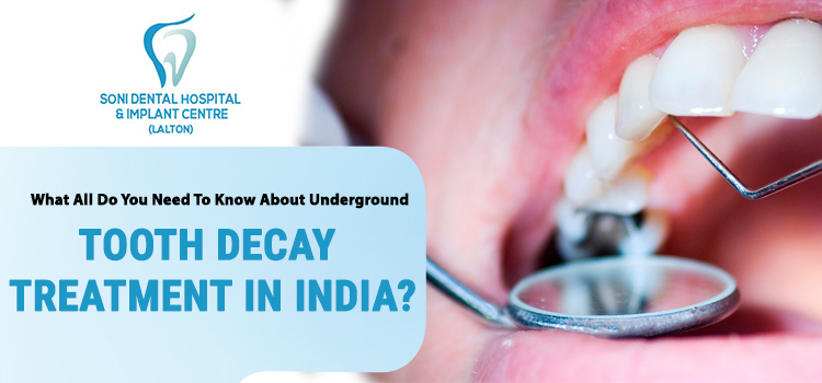 tooth decay treatment in India