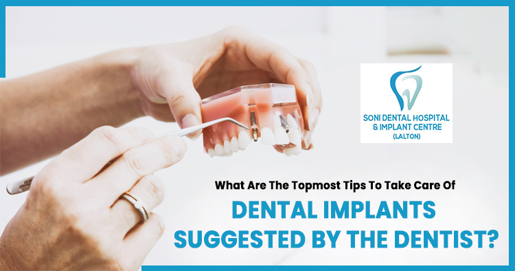 What are the topmost tips to take care of dental implants suggested by the dentist