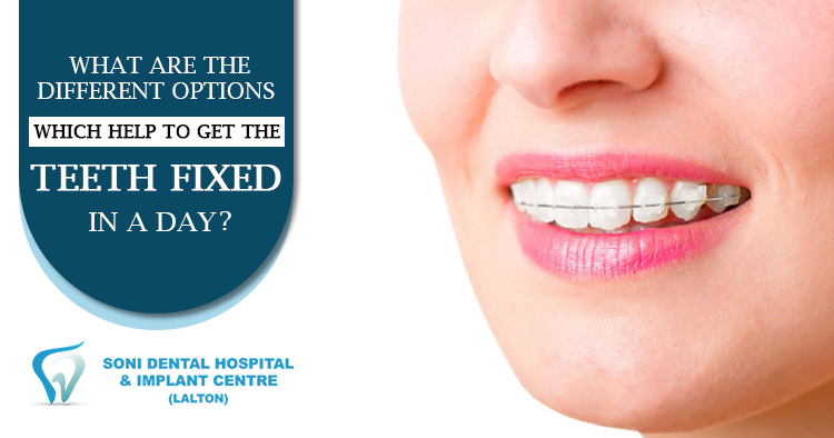 What-are-the-different-options-which-help-to-get-the-teeth-fixed-in-a-day