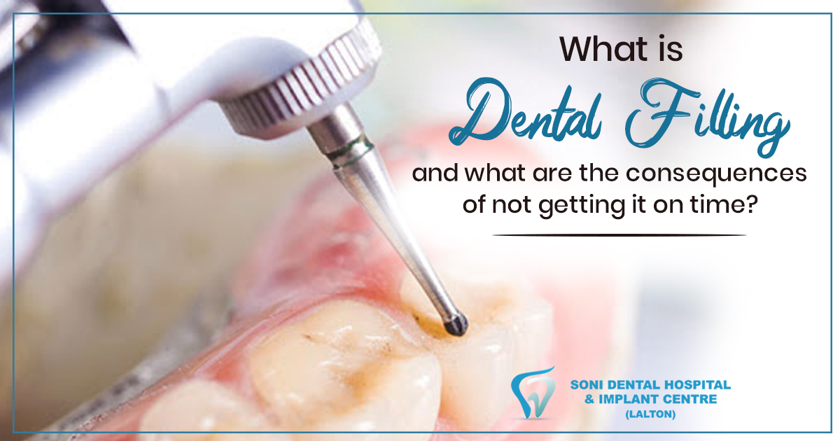 What-is-dental-filling-and-what-are-the-consequences-of-not-getting-it-on-time