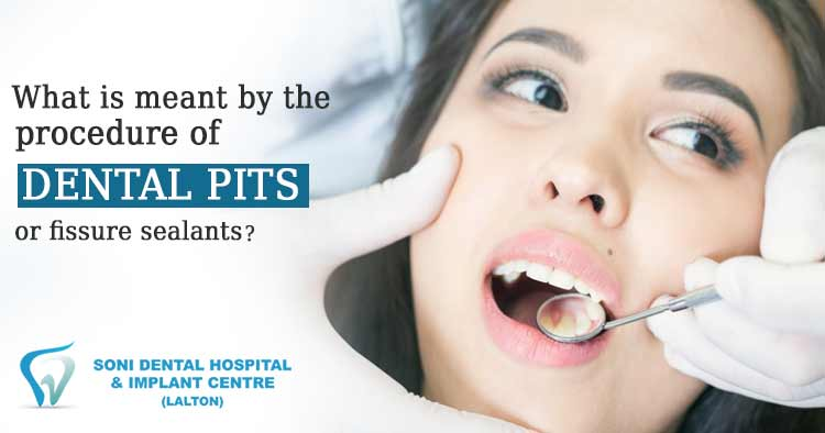 What is meant by the procedure of Dental pits or fissure sealants?