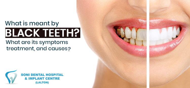 What is meant by black teeth? What are its symptoms, treatment, and causes?
