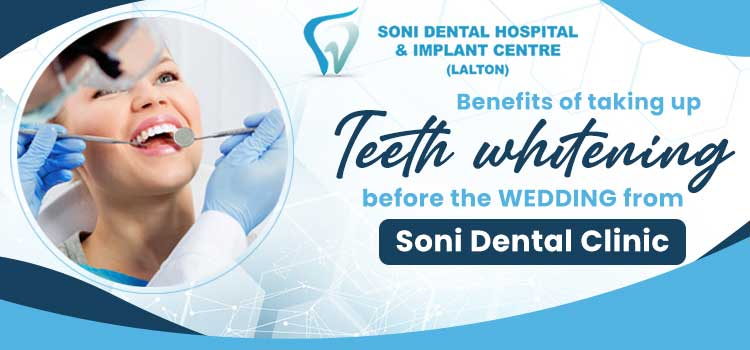 Benefits of taking up Teeth whitening before the wedding from Sonidental clinic