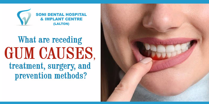 What are receding gum causes, treatment, surgery, and prevention methods?